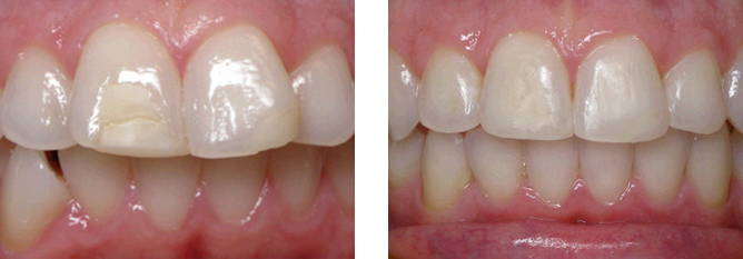 invisalign-treatment-prahran